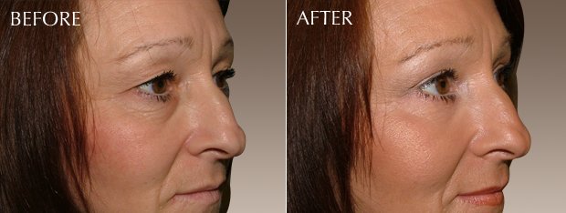 Our Case Study Susanna Before Top And After Bottom Tear Trough Injections
